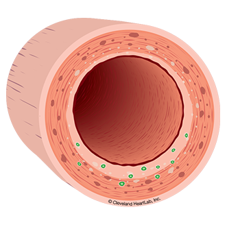 artery wall