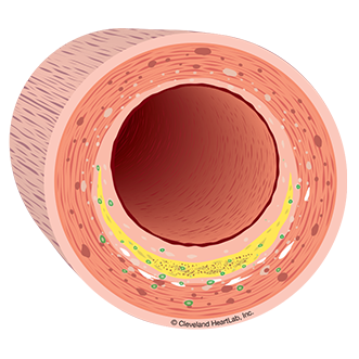 artery wall section 2